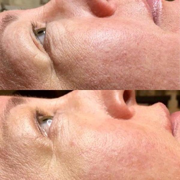 Trænger din hud til et ekstra boost?